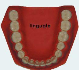 linguale
