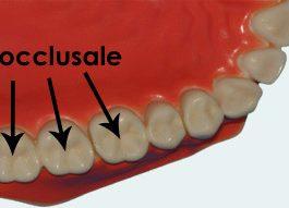 superfici dei denti02